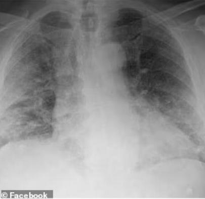 悉尼抗疫一线医生亲述:医院内挤满确诊,重症病患平均年龄仅40多岁